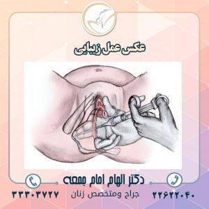 تزریق-چربی-داخل-واژن